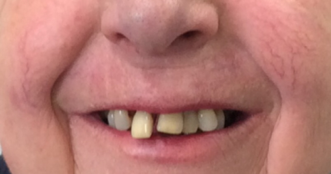 immediate dentures before