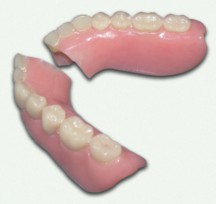Relines repairs and denture soft liners pembroke denture centre dentures repairs solutioingenieria Image collections